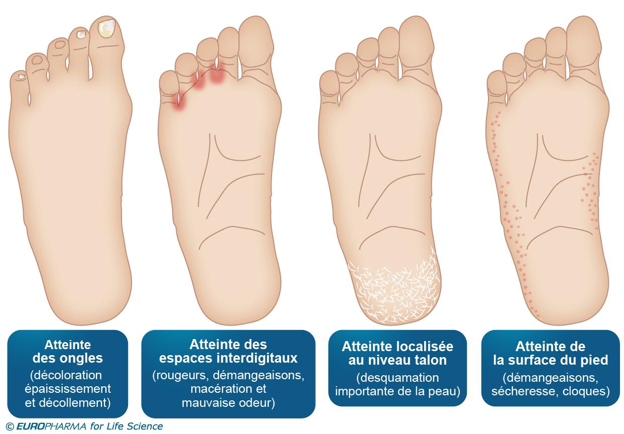 Mycose Des Pieds : Symptômes, Diagnostic, Traitement serapportantà Mycose Piscine